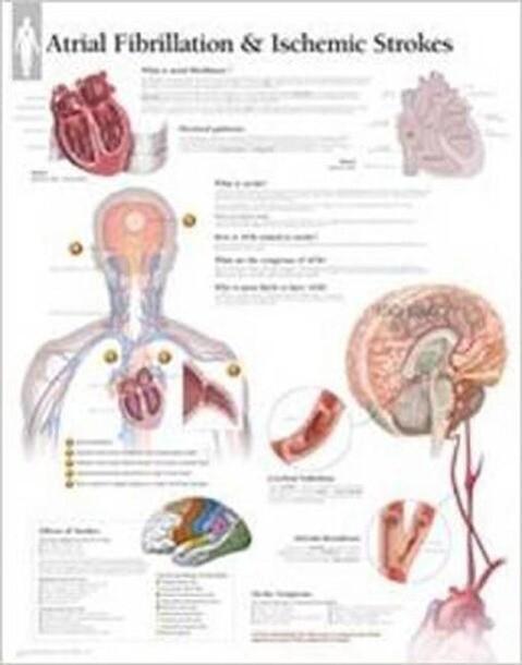 Atrial Fib & Ischemic Strokes Paper Poster.pdf