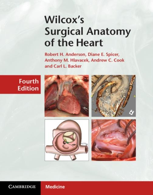 Wilcoxs Surgical Anatomy of the Heart.pdf