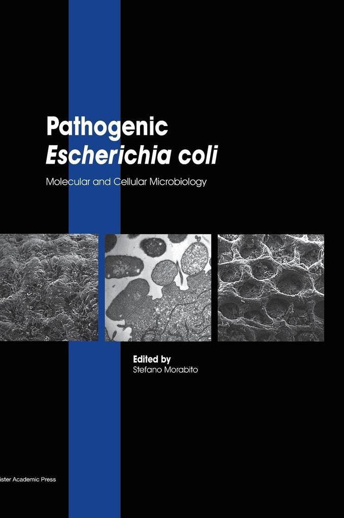 Pathogenic Escherichia coli.pdf