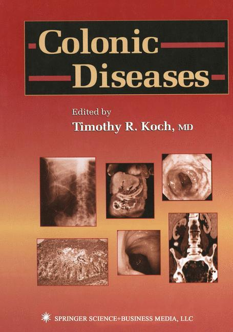 Colonic Diseases.pdf