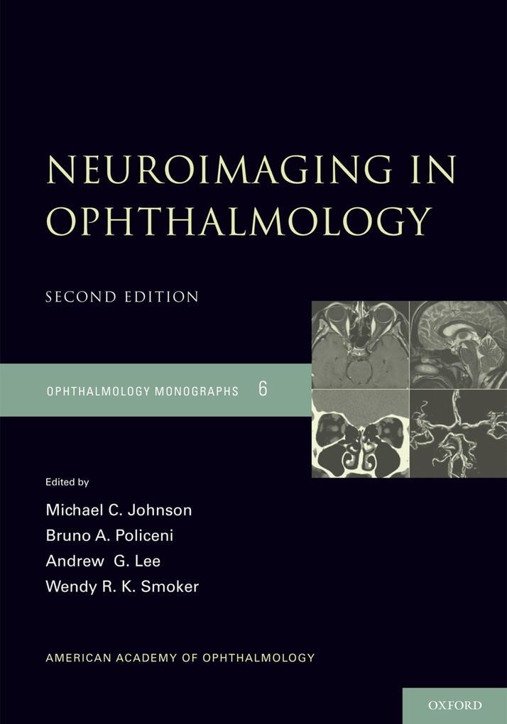 Neuroimaging in Ophthalmology.pdf
