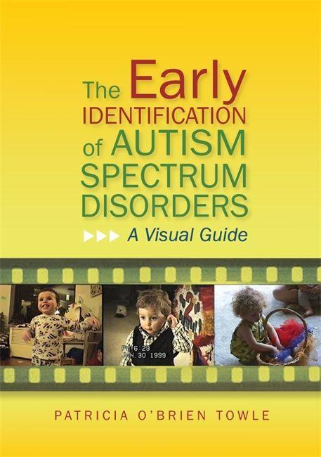 The Early Identification of Autism Spectrum Disorders.pdf