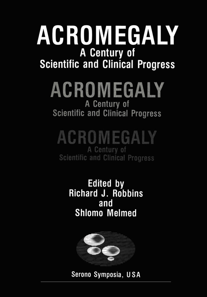 Acromegaly.pdf