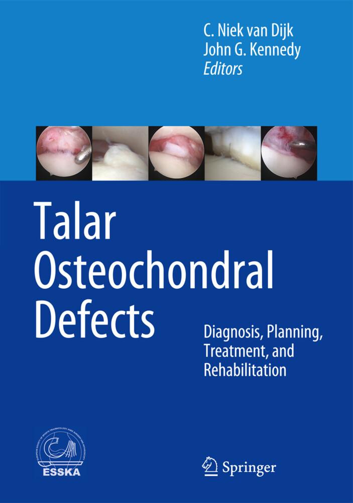 Talar Osteochondral Defects.pdf