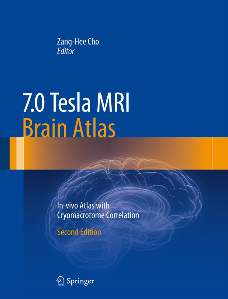 7.0 Tesla MRI Brain Atlas als Buch (gebunden)