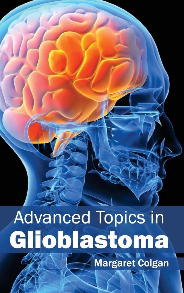 Advanced Topics in Glioblastoma als Buch (gebunden)
