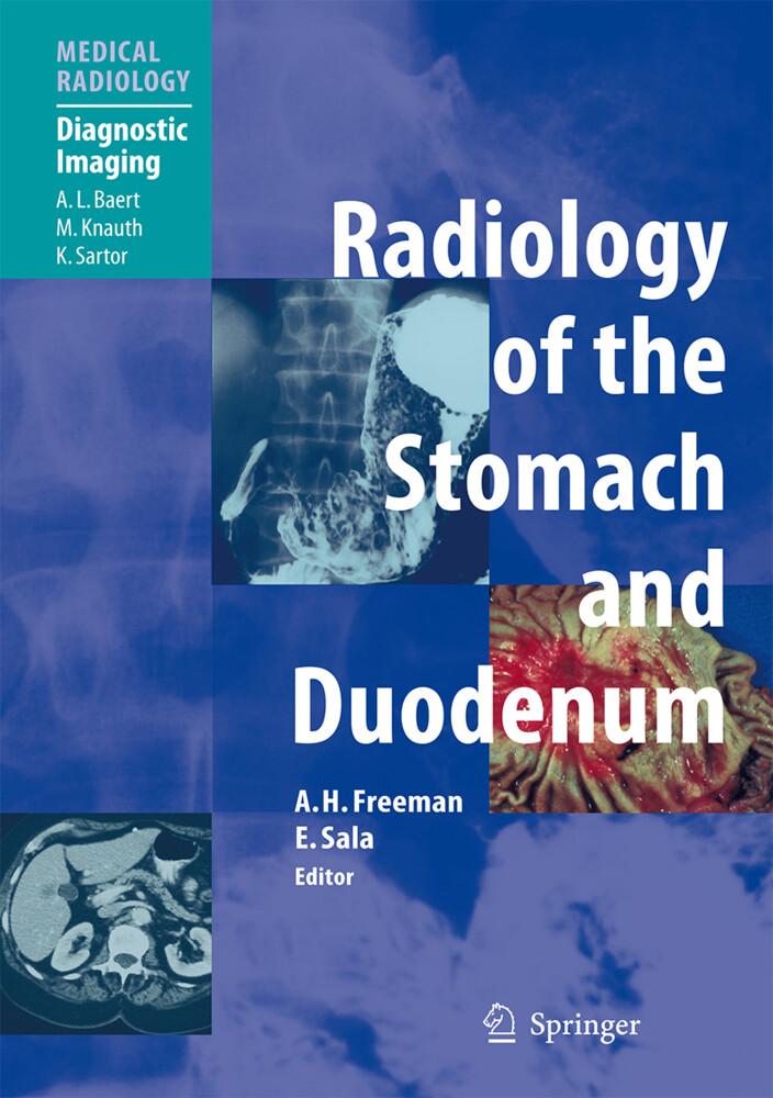 Radiology of the Stomach and Duodenum als Buch (gebunden)