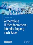 Zementfreie Hüftendoprothese: lateraler Zugang nach Bauer
