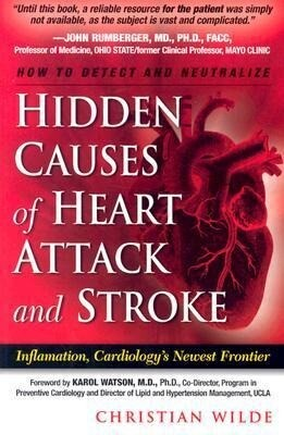 Hidden Causes of Heart Attack and Stroke: (Inflammation, Cardiology's New Frontier) als Taschenbuch
