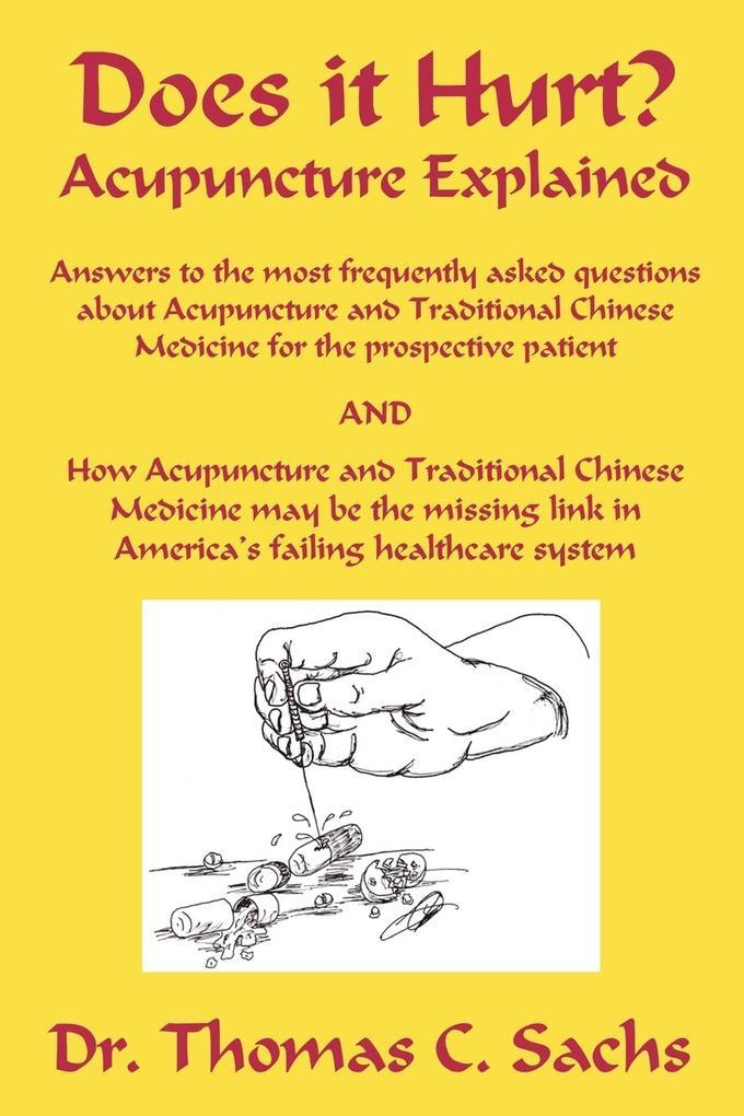 Does It Hurt? Acupuncture Explained als Taschenbuch