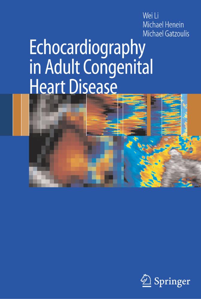Echocardiography in Adult Congenital Heart Disease als Buch (gebunden)