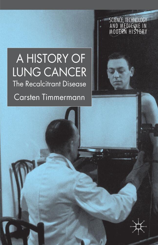 A History of Lung Cancer als Buch (gebunden)
