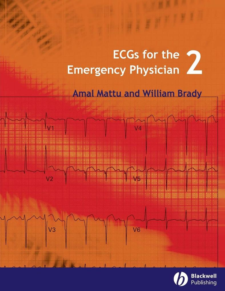 ECGs for the Emergency Physician 2 als Taschenbuch