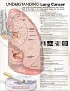 Understanding Lung Cancer Anatomical Chart als Sonstiger Artikel