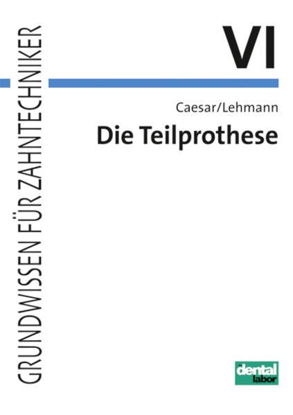 Die Teilprothese als Buch (kartoniert)